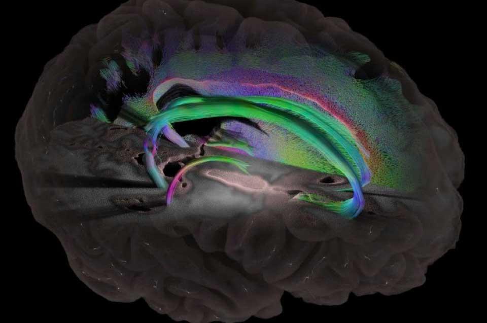 性别与患阿尔茨海默症风险之间的联系