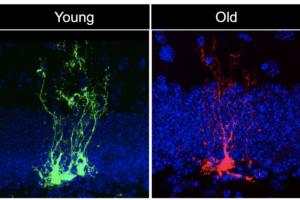 我们的大脑会比身体其他部位衰老得更快吗-南加州大学中文官网